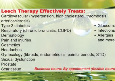leech therapy 2